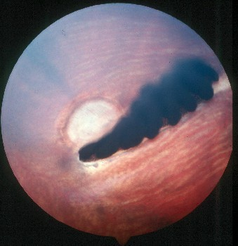 normal-fundus-in-raptor